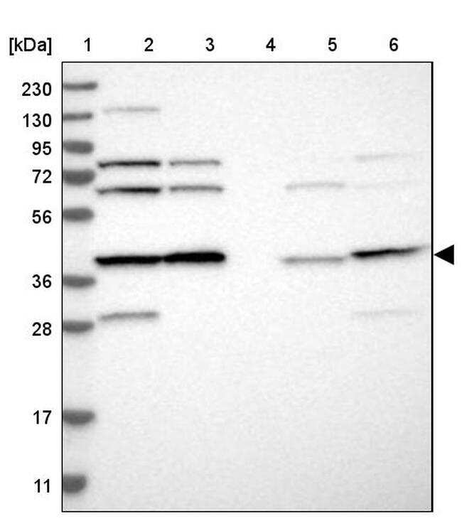 eIF3h Antibody in Western Blot (WB)