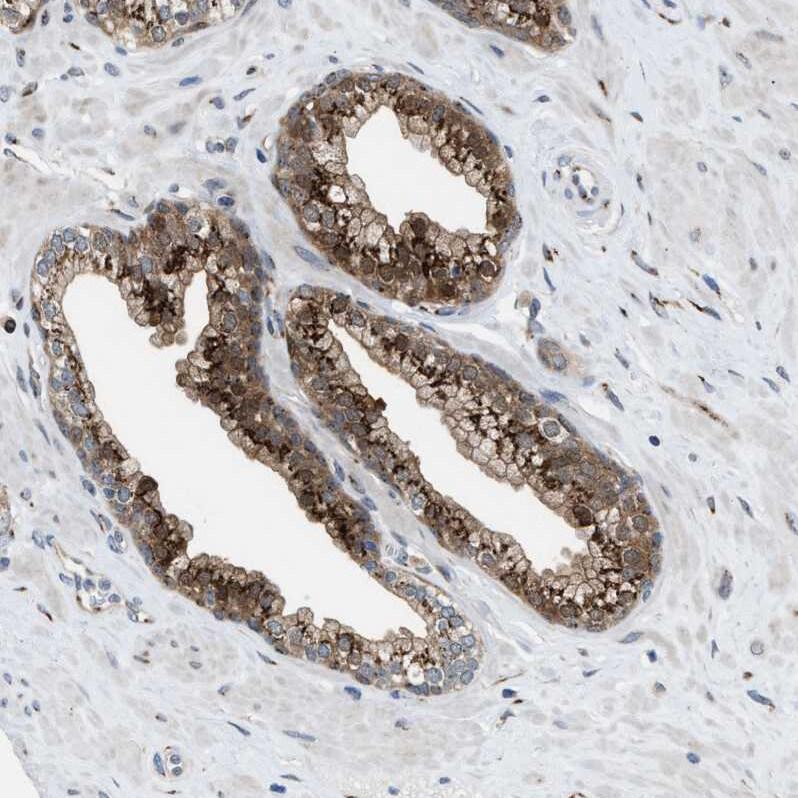 SLC38A10 Antibody in Immunohistochemistry (IHC)