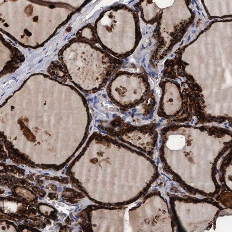 PGCP Antibody in Immunohistochemistry (IHC)