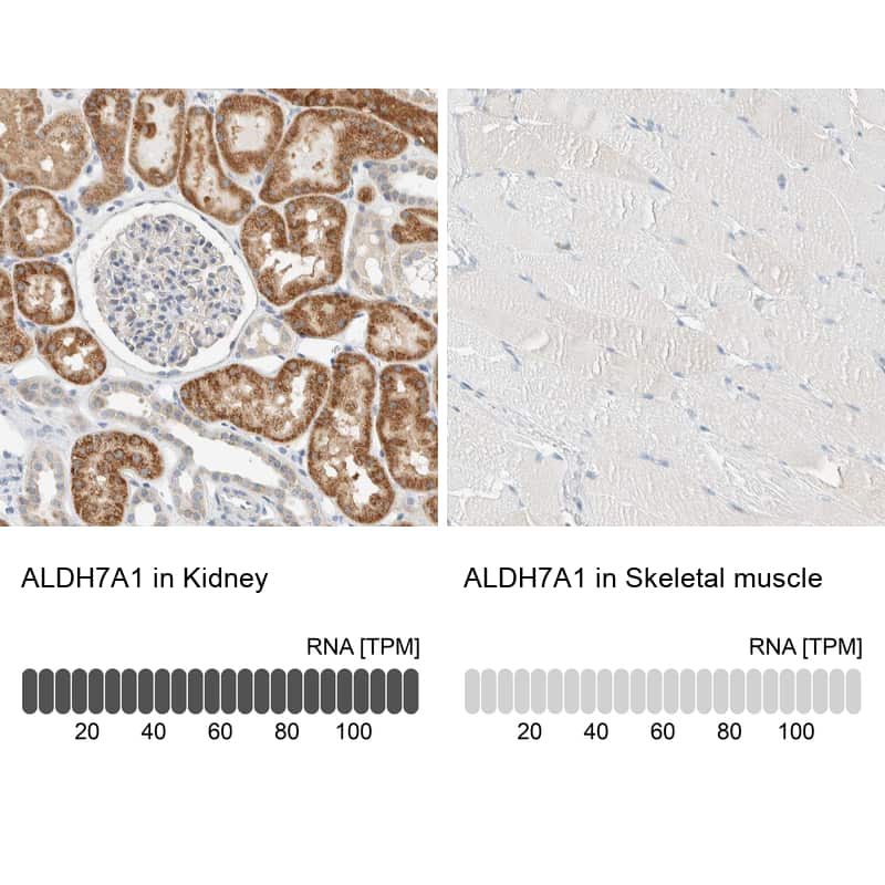 ALDH7A1 Antibody in Relative expression