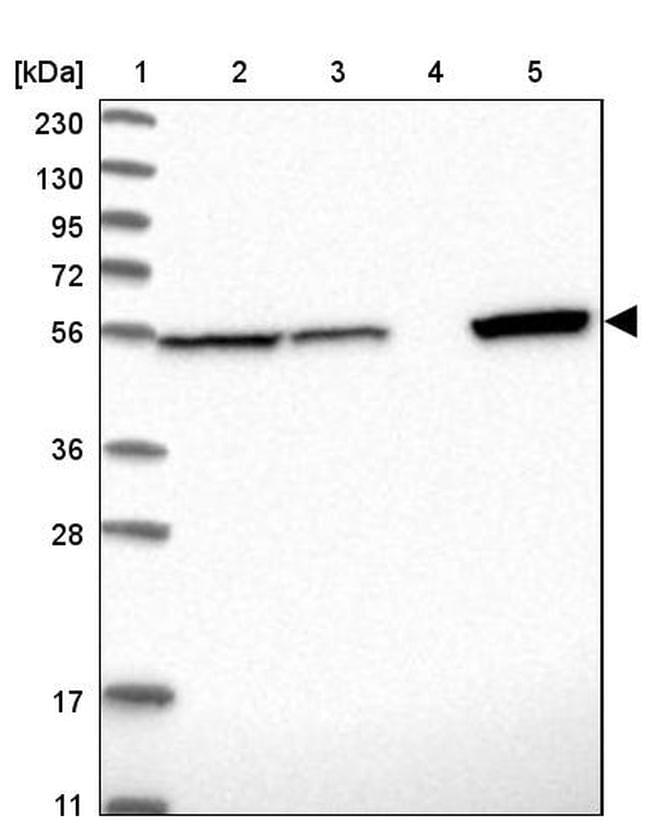 ALDH7A1 Antibody in Western Blot (WB)
