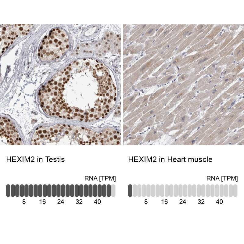 HEXIM2 Antibody in Immunohistochemistry (IHC)