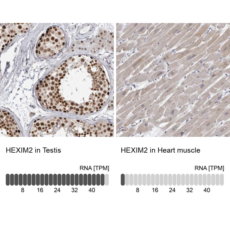 HEXIM2 Antibody in Relative expression