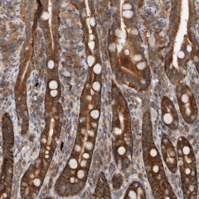 CCDC43 Antibody in Immunohistochemistry (IHC)