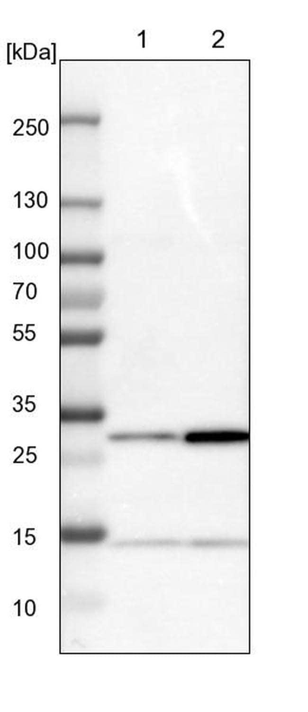 CCDC43 Antibody in Western Blot (WB)