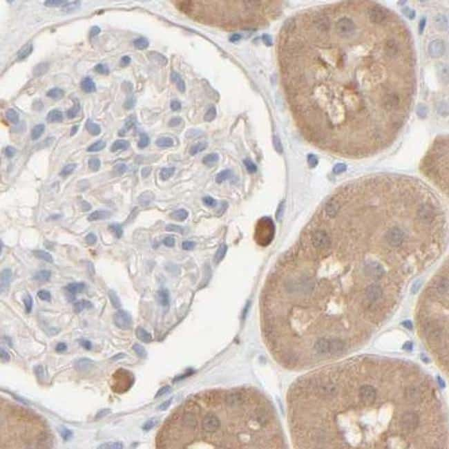 HRSP12 Antibody in Immunohistochemistry (IHC)