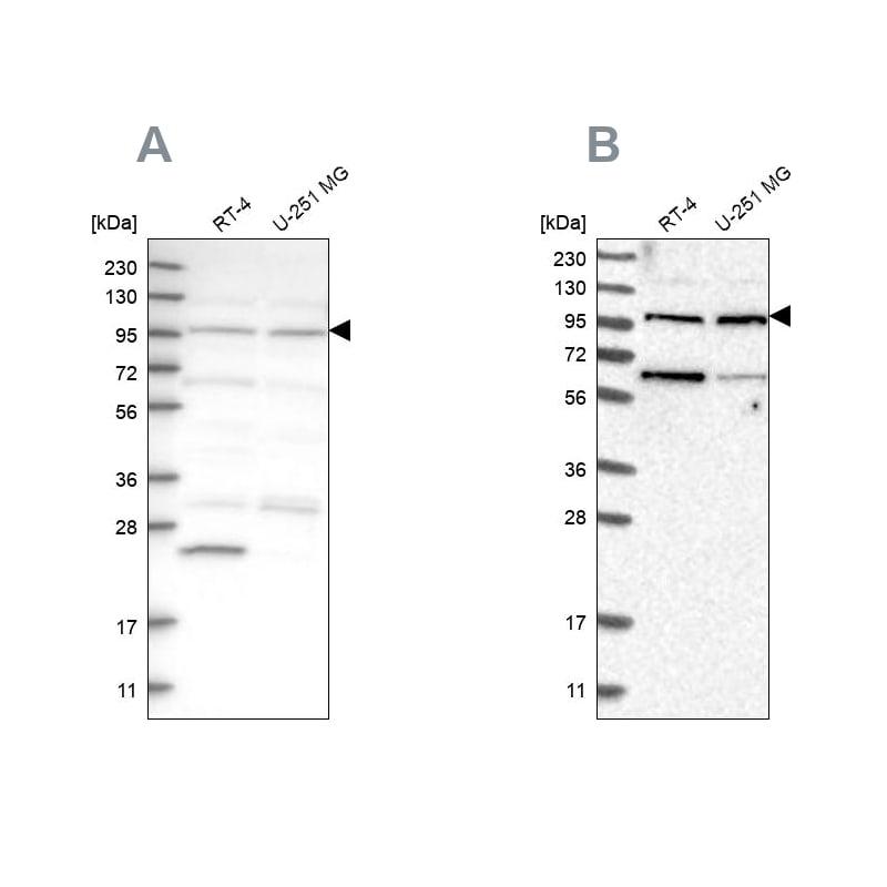 KIAA0753 Antibody in Western Blot (WB)