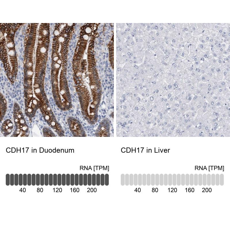 CDH17 Antibody in Relative expression