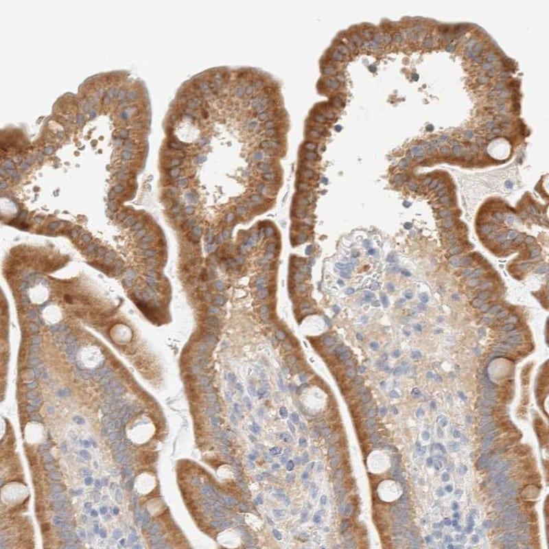 NT5C Antibody in Immunohistochemistry (IHC)