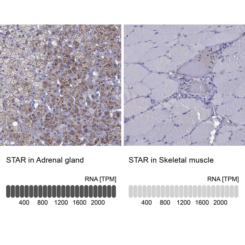 STAR Antibody in Relative expression