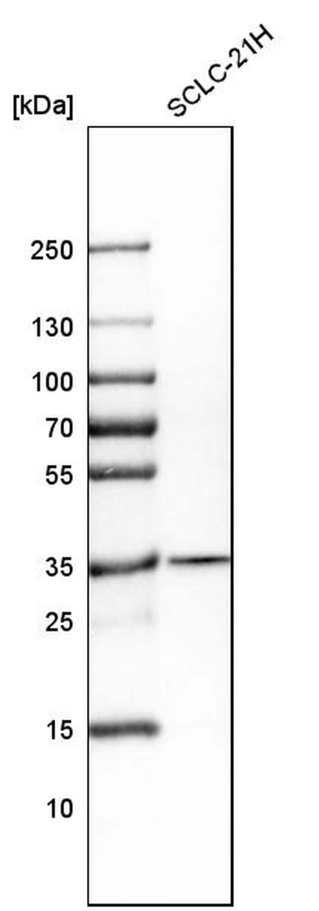 CDCA5 Antibody in Western Blot (WB)