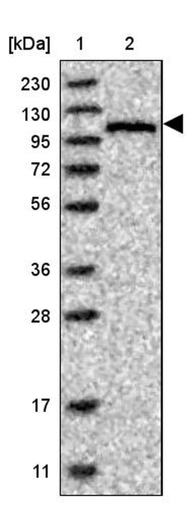 CASK Antibody in Western Blot (WB)