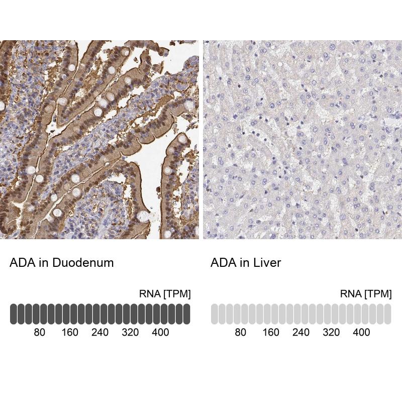 Adenosine Deaminase Antibody in Immunohistochemistry (IHC)
