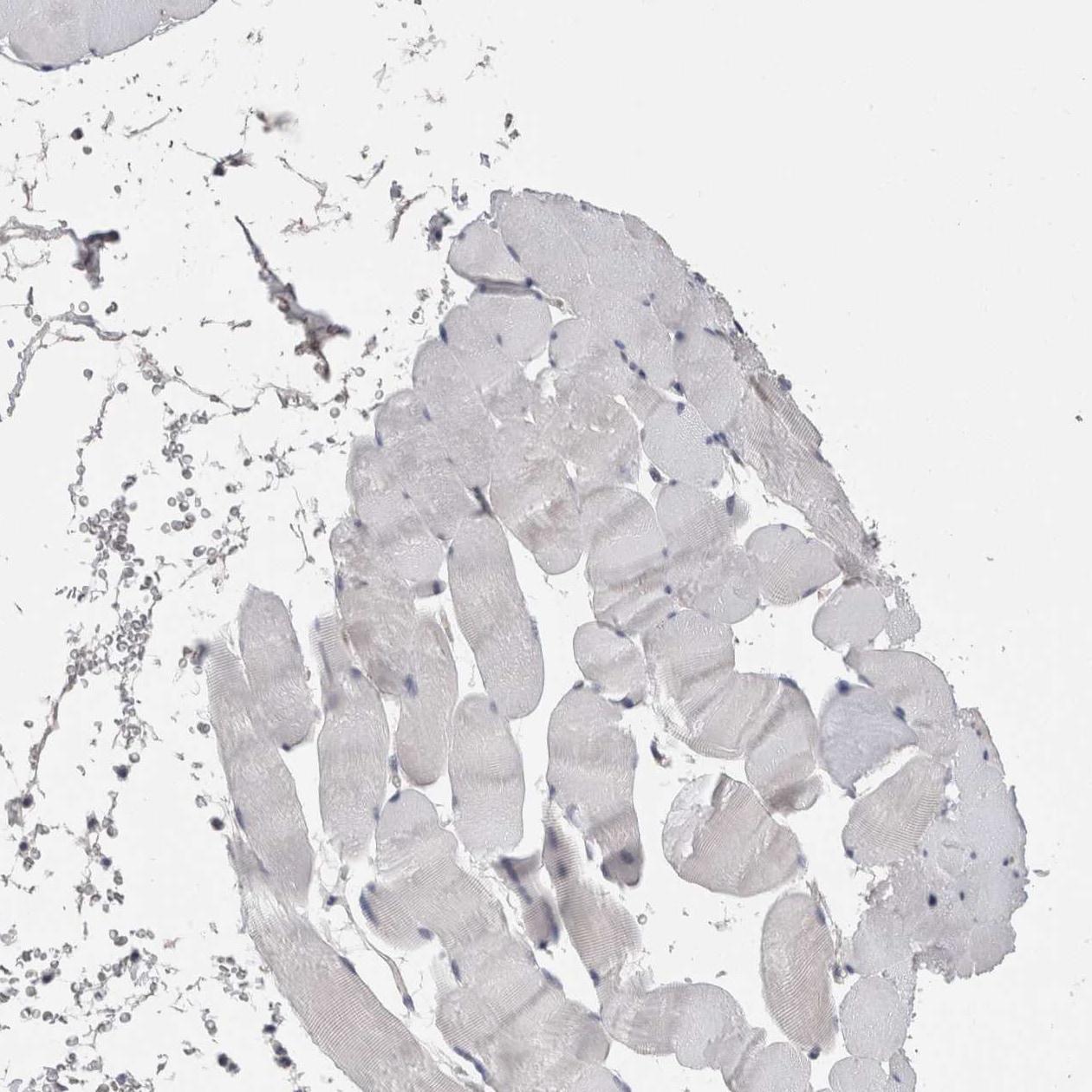 STC1 Antibody in Immunohistochemistry (IHC)
