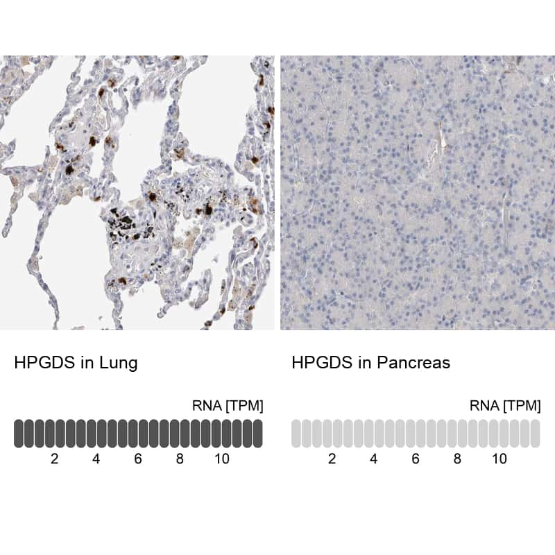 HPGDS Antibody in Relative expression