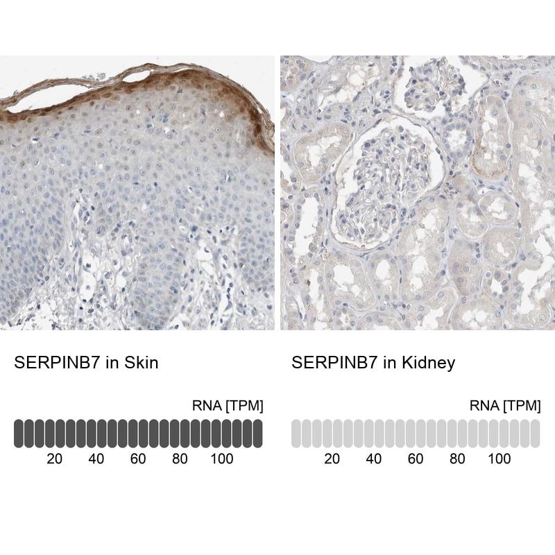 SERPINB7 Antibody in Relative expression