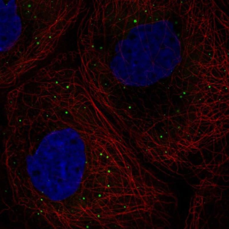DDX6 Antibody in Immunofluorescence (IF)