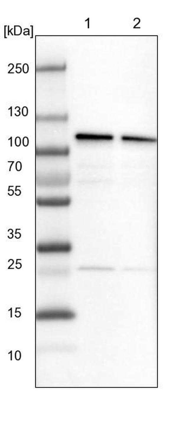 CPSF2 Antibody in Western Blot (WB)