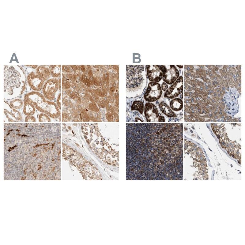CCDC44 Antibody in Immunohistochemistry (IHC)