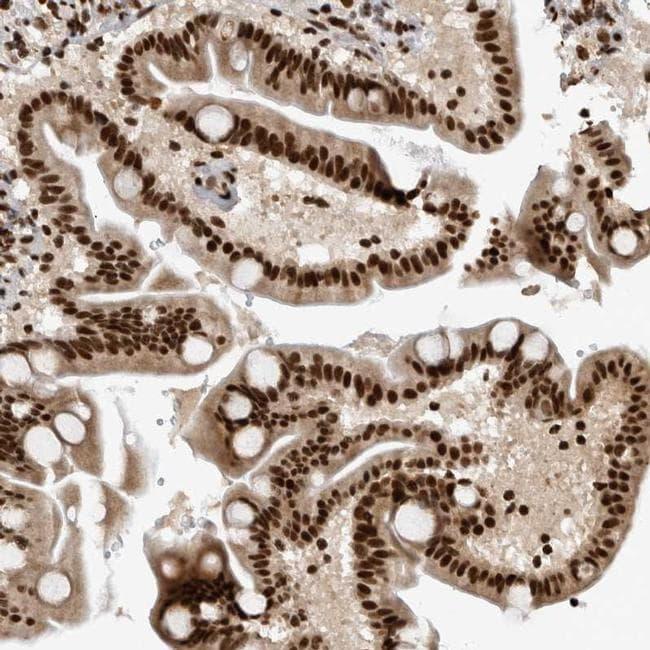 ZSCAN2 Antibody in Immunohistochemistry (IHC)