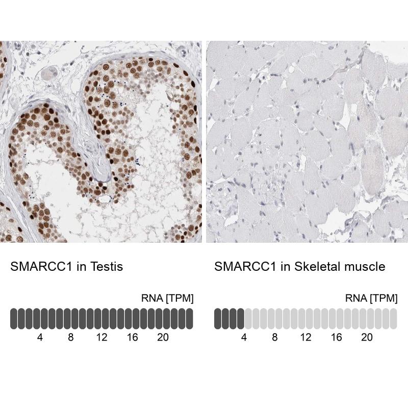 SMARCC1 Antibody in Immunohistochemistry (IHC)