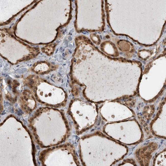 USH1G Antibody in Immunohistochemistry (IHC)