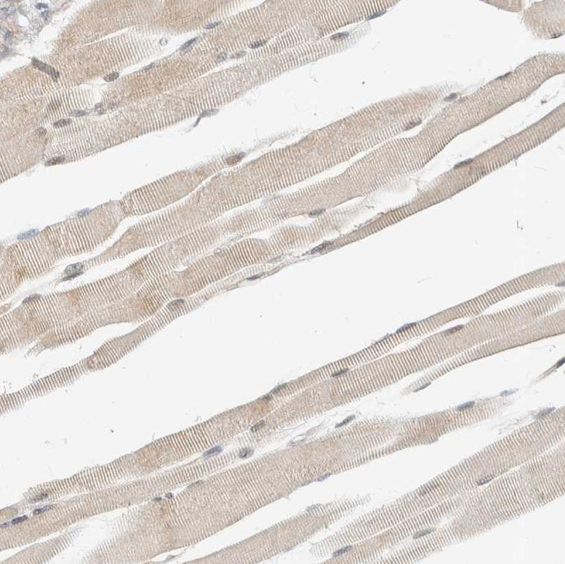 ADSS Antibody in Immunohistochemistry (IHC)