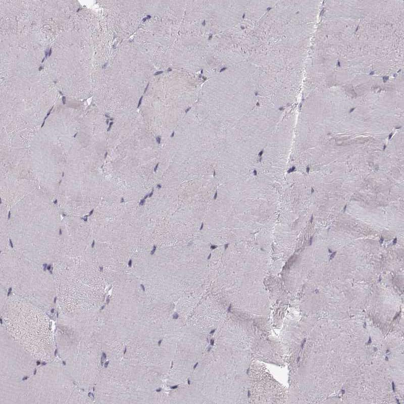 KLF17 Antibody in Immunohistochemistry (IHC)