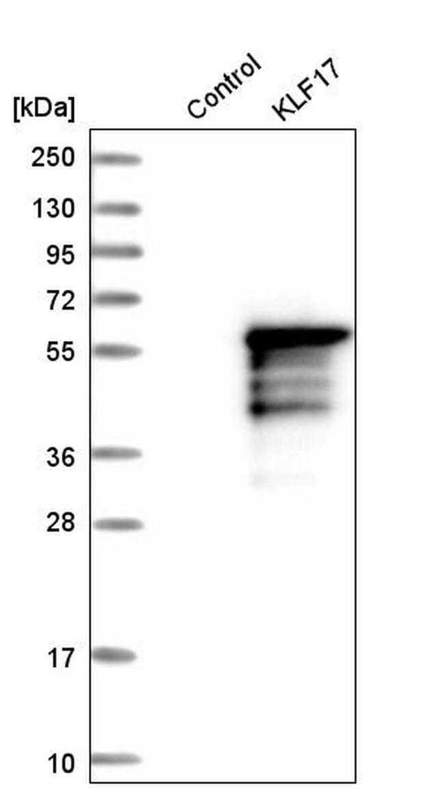 KLF17 Antibody in Western Blot (WB)