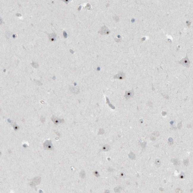 BXDC5 Antibody in Immunohistochemistry (IHC)