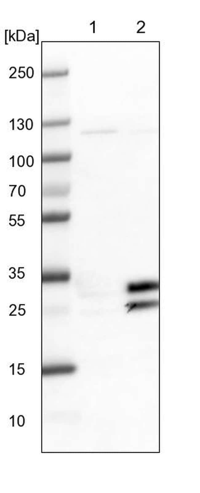 Cnpy4 Antibody in Western Blot (WB)