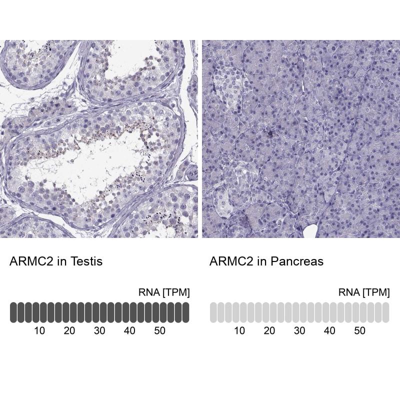 ARMC2 Antibody in Relative expression