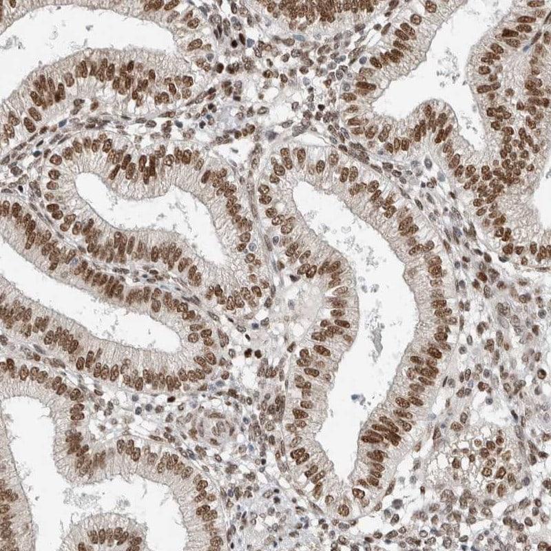 hnRNP R Antibody in Immunohistochemistry (IHC)