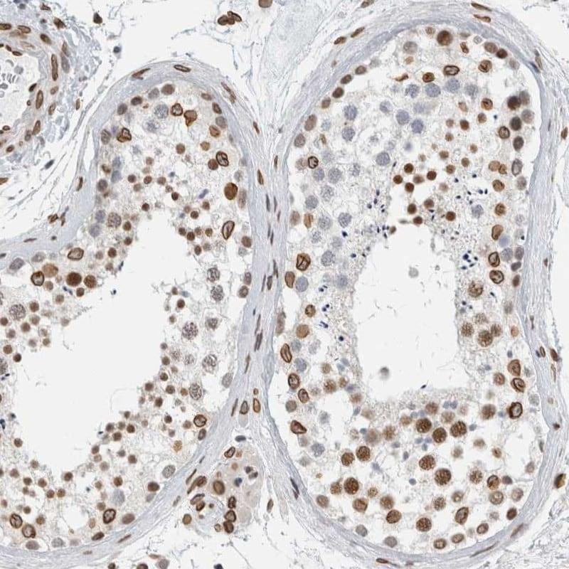 CDCA2 Antibody in Immunohistochemistry (IHC)