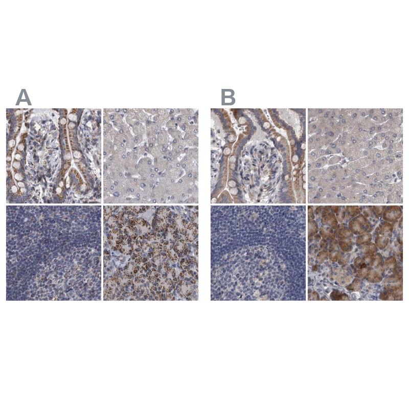 DBT Antibody in Immunohistochemistry (IHC)