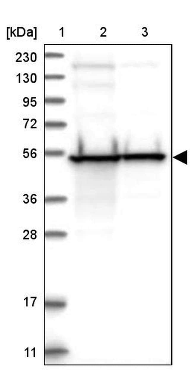 DBT Antibody in Western Blot (WB)