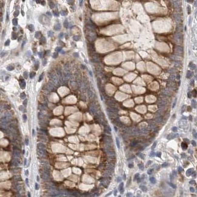 CCBL2 Antibody in Immunohistochemistry (IHC)