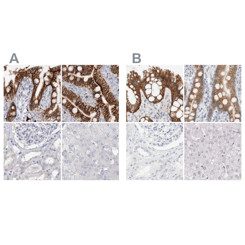 CDH17 Antibody in Immunohistochemistry (IHC)