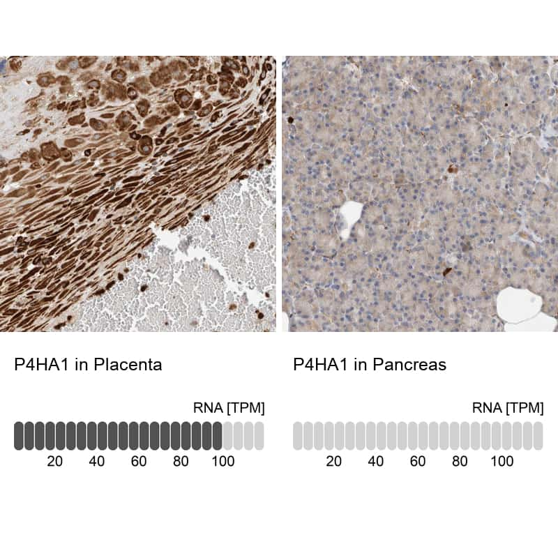 P4HA1 Antibody in Relative expression