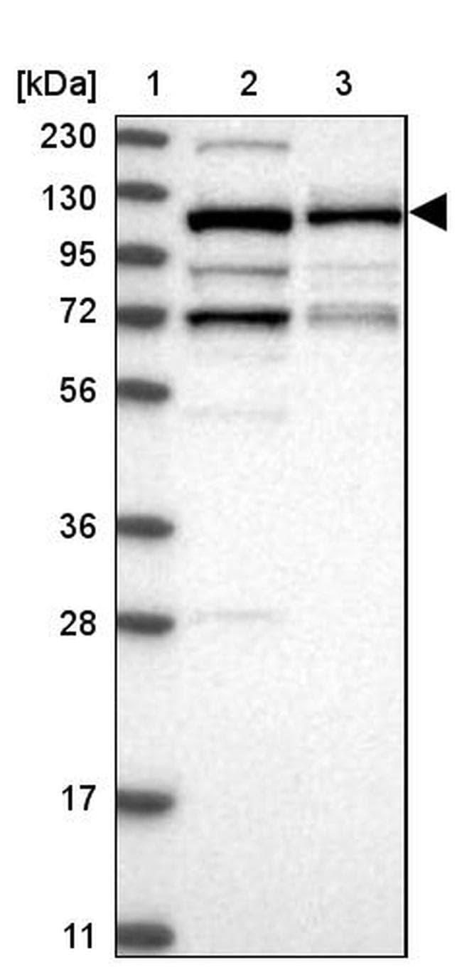 CCDC132 Antibody in Western Blot (WB)