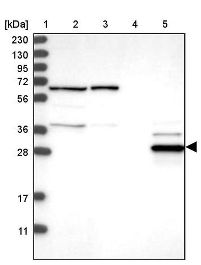 ECHDC2 Antibody in Western Blot (WB)