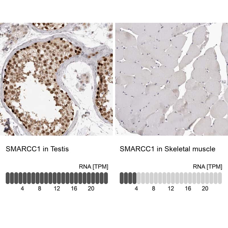 SMARCC1 Antibody in Relative expression