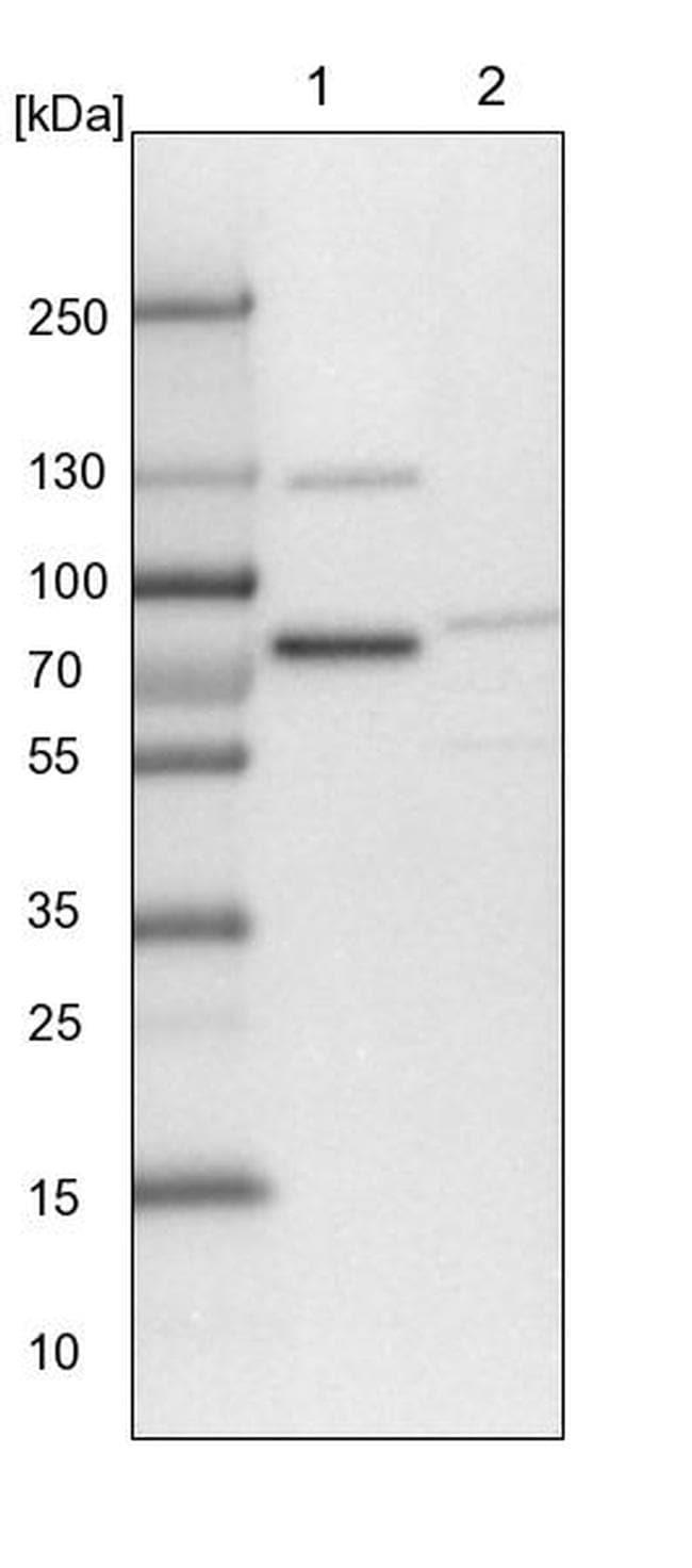 TMTC2 Antibody in Western Blot (WB)