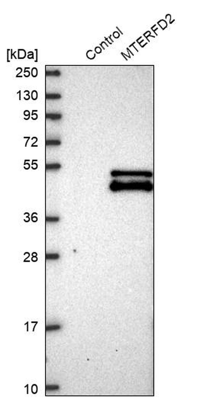 MTERFD2 Antibody in Western Blot (WB)