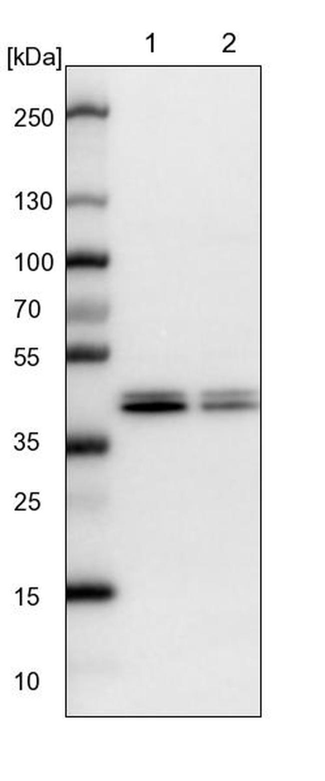 CCBL2 Antibody in Western Blot (WB)