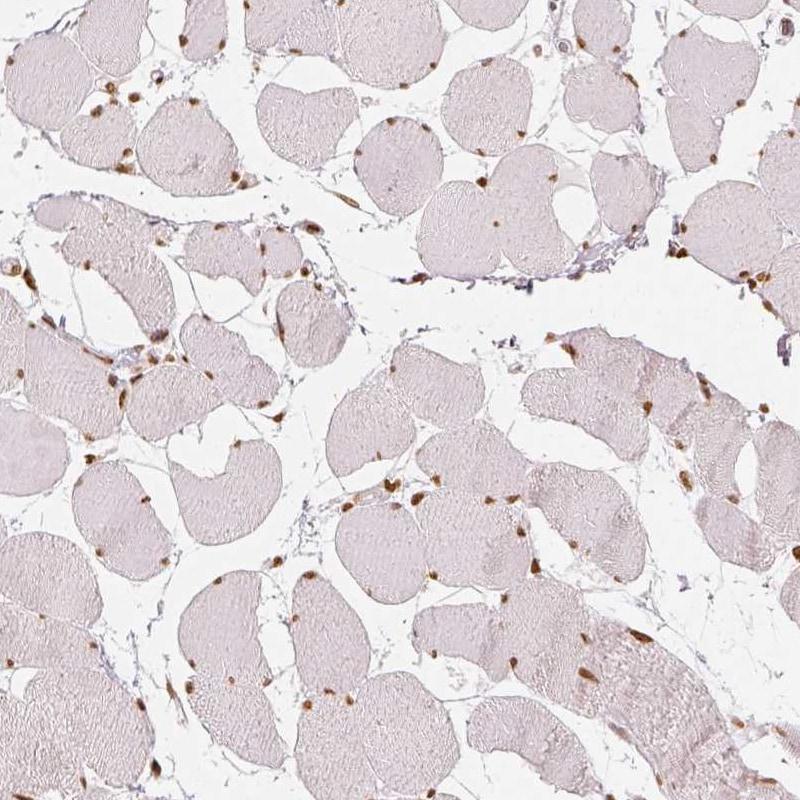 KDM5B Antibody in Immunohistochemistry (IHC)
