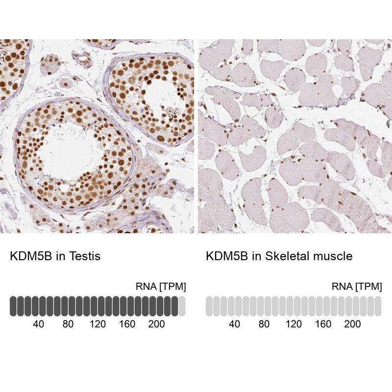 KDM5B Antibody in Relative expression