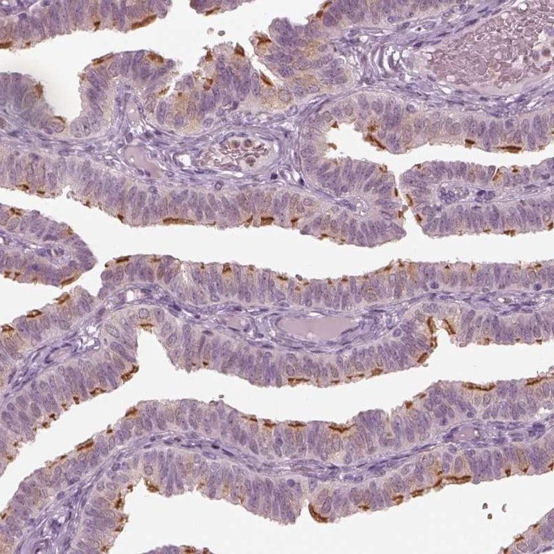 C6orf97 Antibody in Immunohistochemistry (IHC)