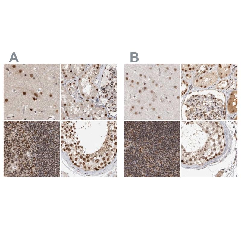 ZNF830 Antibody in Immunohistochemistry (IHC)