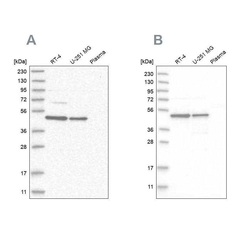 ZNF830 Antibody in Western Blot (WB)